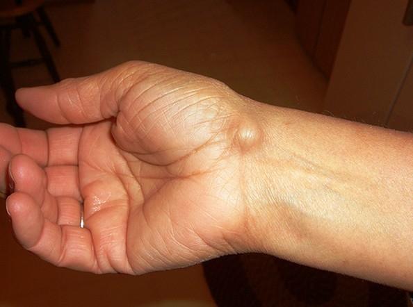ízületi gyulladás a csuklóján