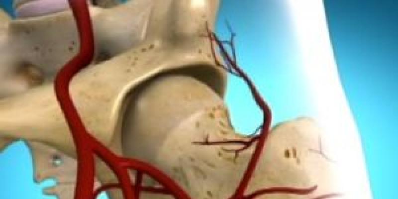 térdkezelési módszerek deformáló artrózisa