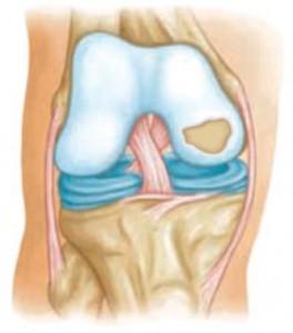 ulnar ízületeket okoz minden ízület fáj, kezelést okoz