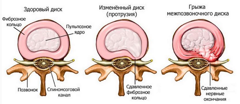csukló artrózis. kezelés kenőcsök rák és ízületi fájdalmakhoz