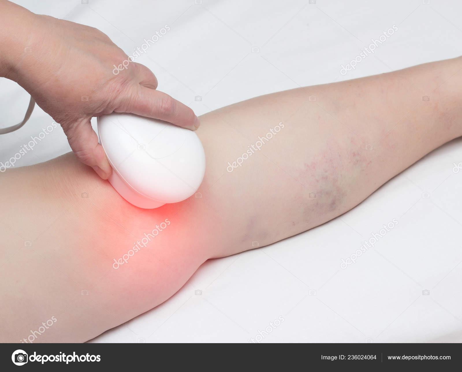 bokaízületek osteoarthrosis kezelése