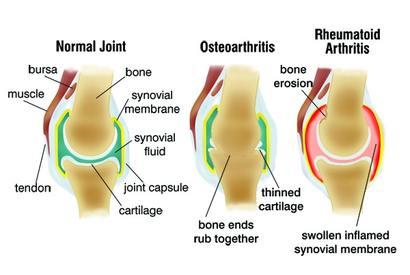 a térd nyálkahártya artrózisának kezelése glükózamin-kondroitin komplex por