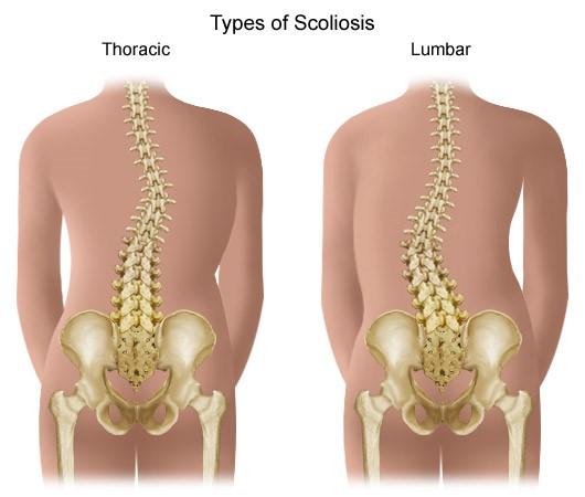 coxarthrosis, amely deformálja a csípő artrózisát)