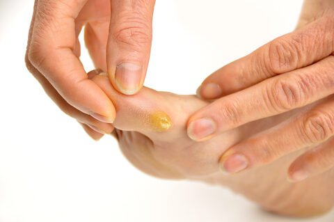 A láb artrózis tünetei és kezelése - a betegség teljes áttekintése - Gombaféle
