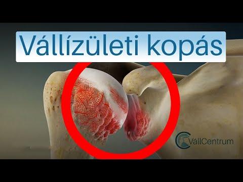 vállövíz artrózis
