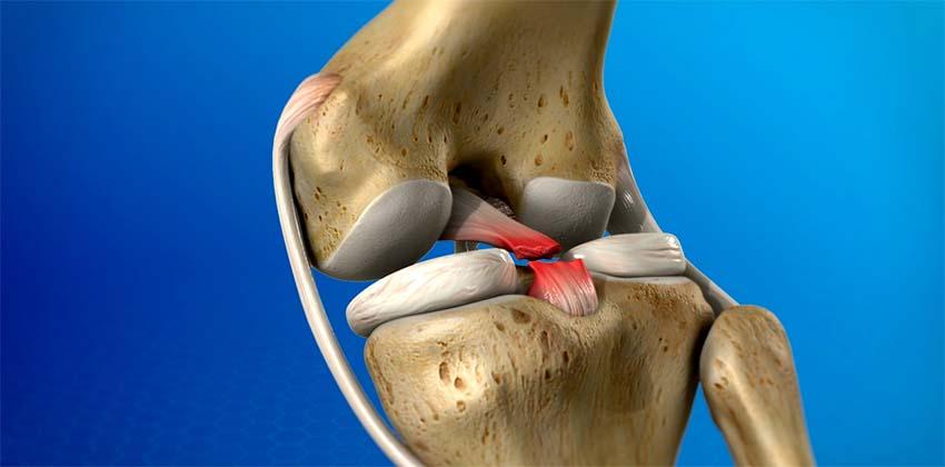csuklószalag sérülések kezelése)