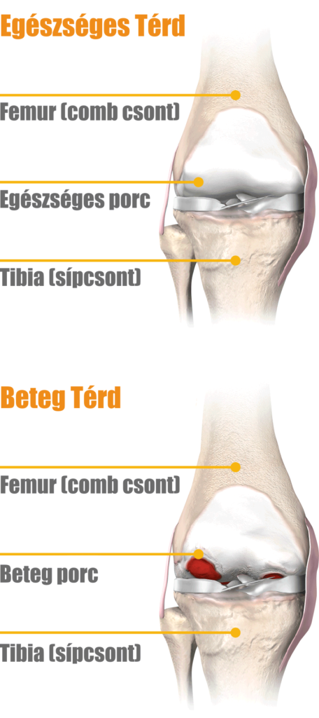 Folyadék a könyökcsuklóban sérülés után - Frissítő