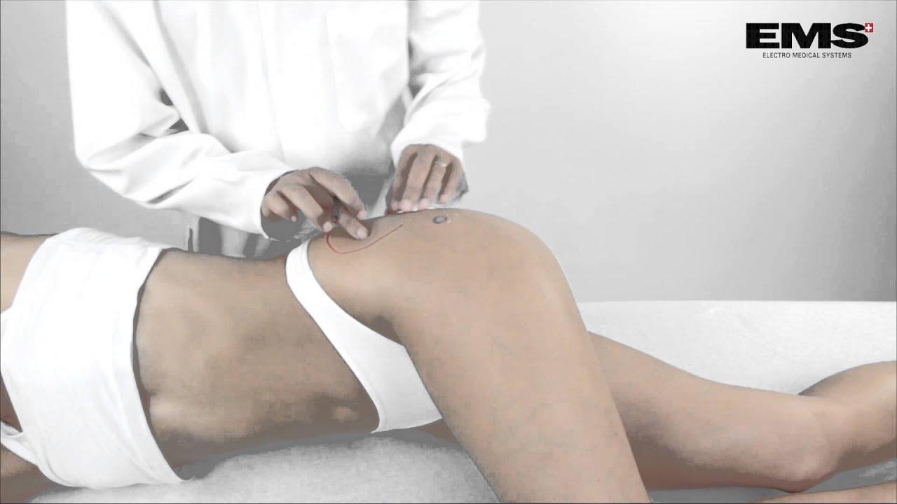 kezdő fájdalmak a csípőízületekben kirkland chondroitin glucosamine
