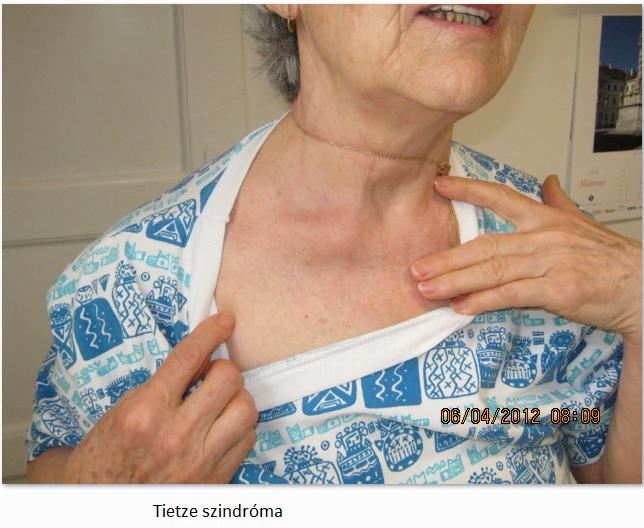 szegycsont borda ízületi fájdalom