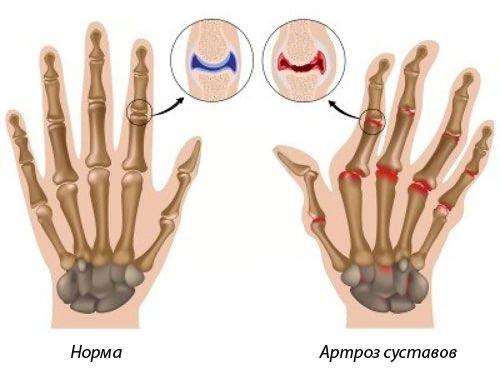 mi kezeli az ujjak ízületeit)