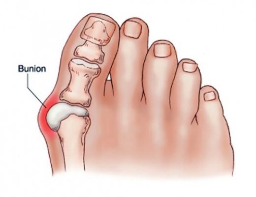 izületi gyulladás lábujjakon