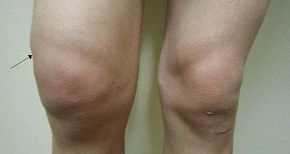 miért duzzadnak a lábak ízületei fájó láb csípőízület