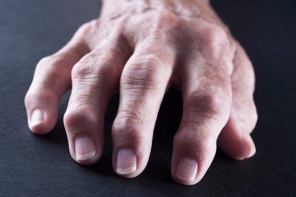 a jobb kéz ízületi fájdalma