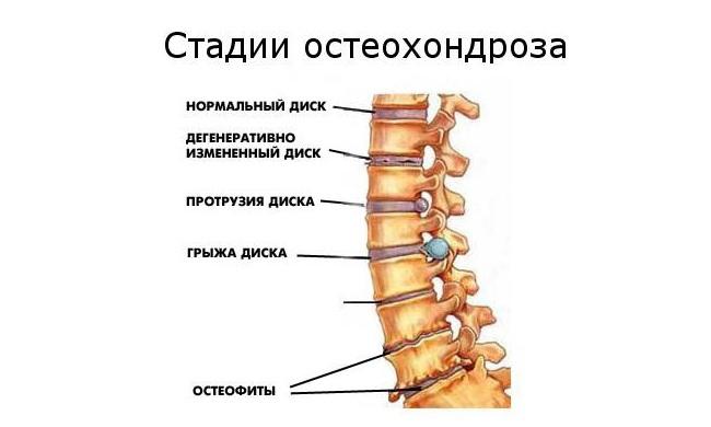 az ízületek artrózisának modern kezelése csont- és ízületi gyulladások tünetei