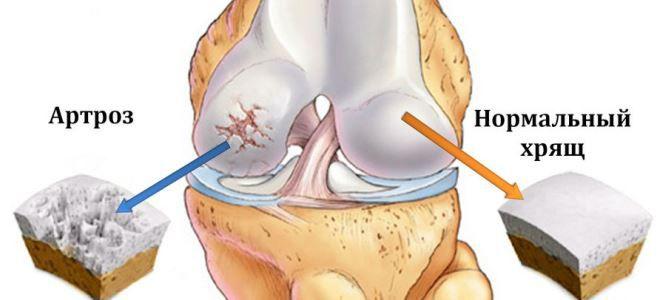 hogyan lehet kezelni a jobb térdízület deformáló artrózisát