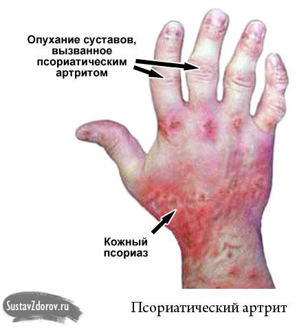térdfájdalomcsillapító gyógyszerek)