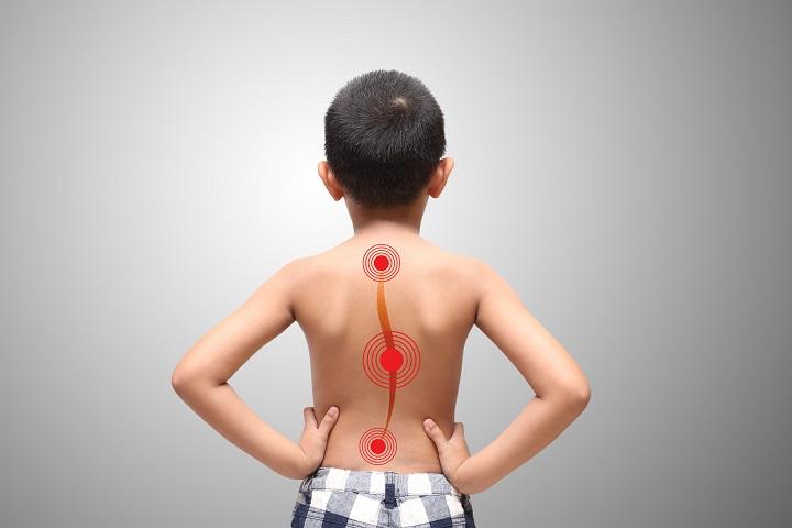 Gerincferdülés 4 oka, 10 tünete, 5 kezelési módja [teljes útmutató]
