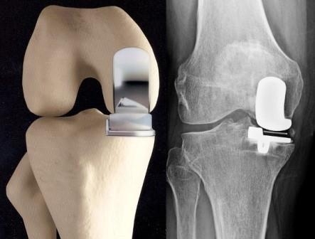 a térd kompressziós artrózisa fájdalom a vállízületben a kar alatt