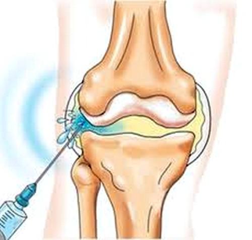 bischofite ízületi fájdalom