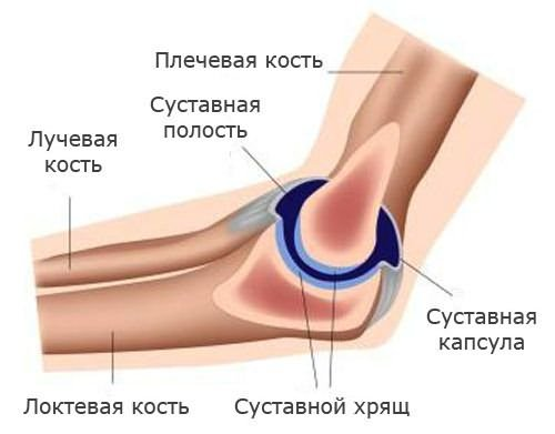súlyos fájdalom a kar ízületében)