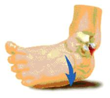 a boka ínszalagjának károsodása