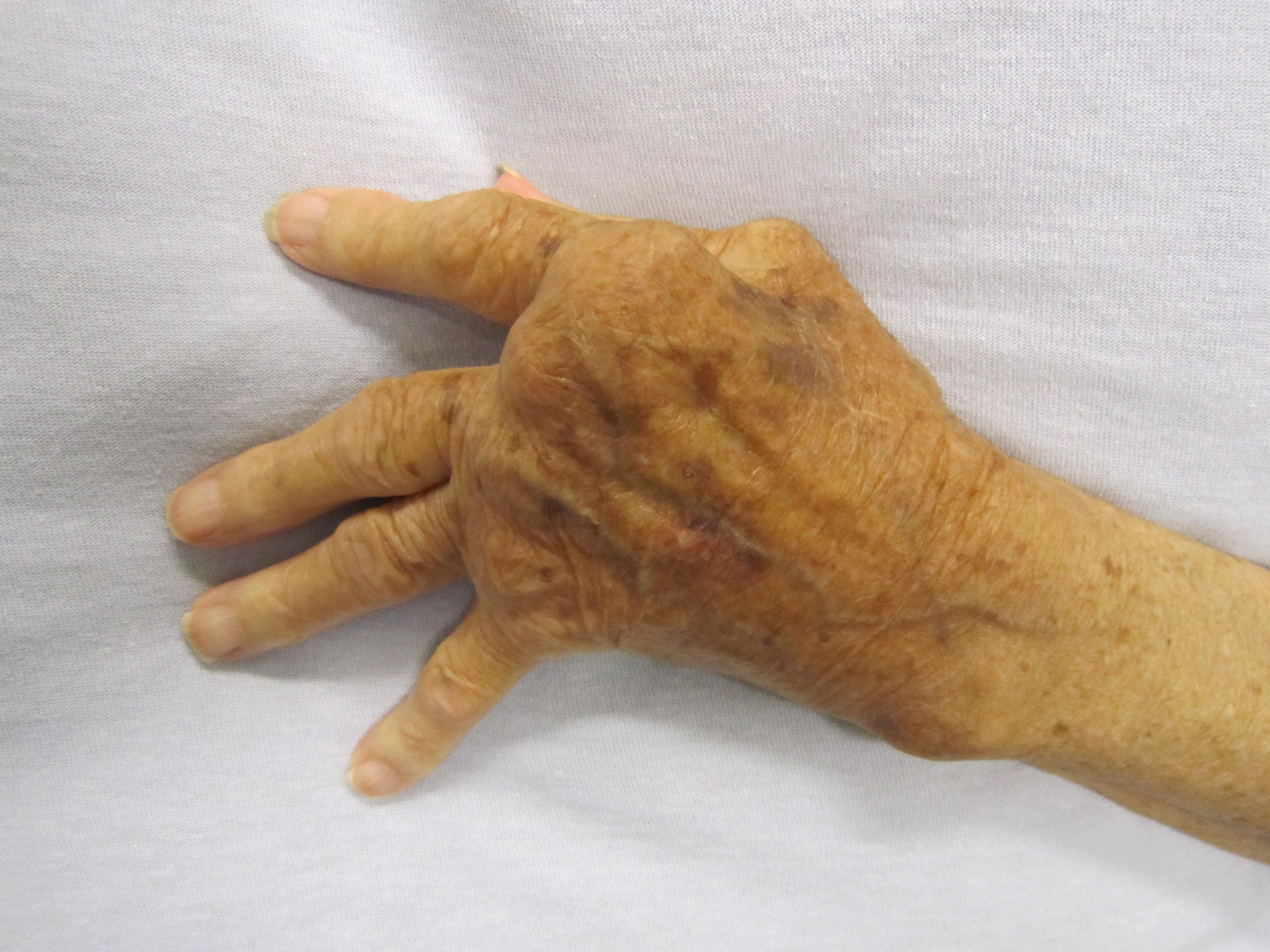betegség az ujjak ízületein)