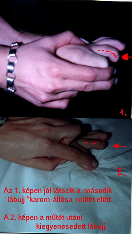 a második lábujj artroxisának kezelése)
