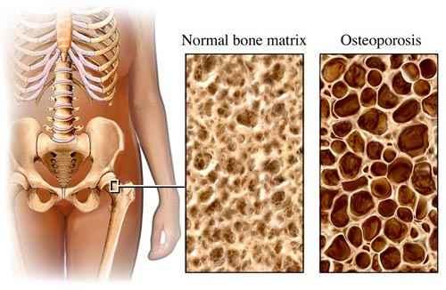 gyógyszerek csontritkulás és ízületek kezelésére időszakos térdfájdalom