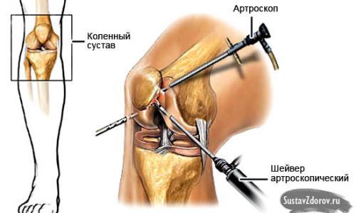 a térd gonarthrosisának kezelése)