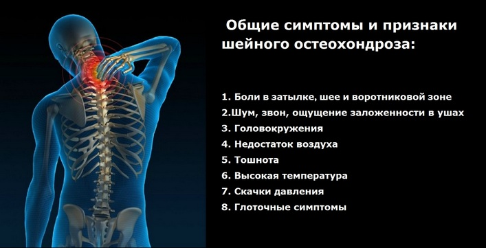 kenőcs a nyaki osteochondrozishoz