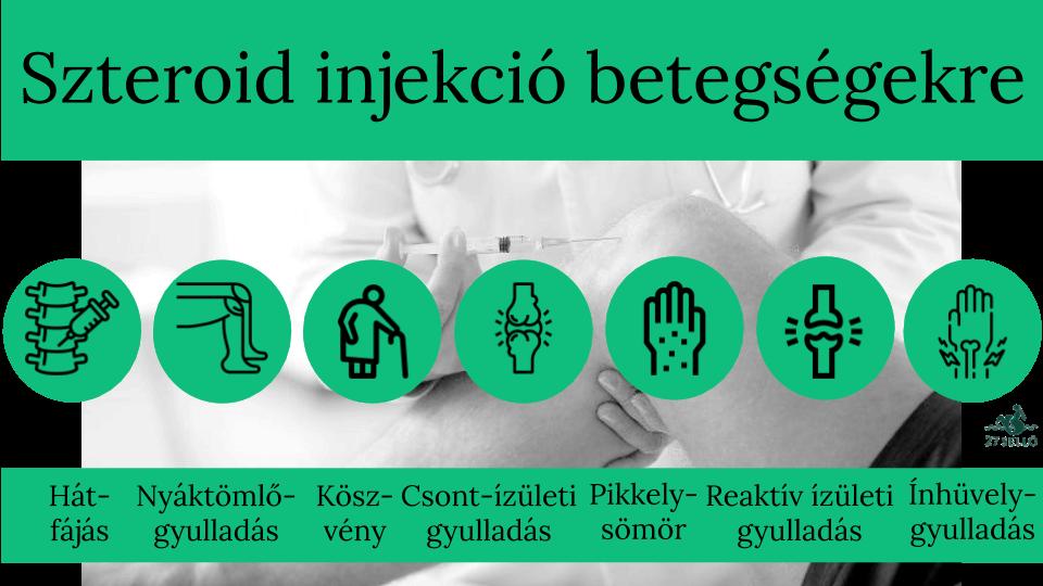 A csípőízület artrózisa 2 fok, A csípőízület osteoarthritis: kezelés, tünetek, fok - Masszázs July