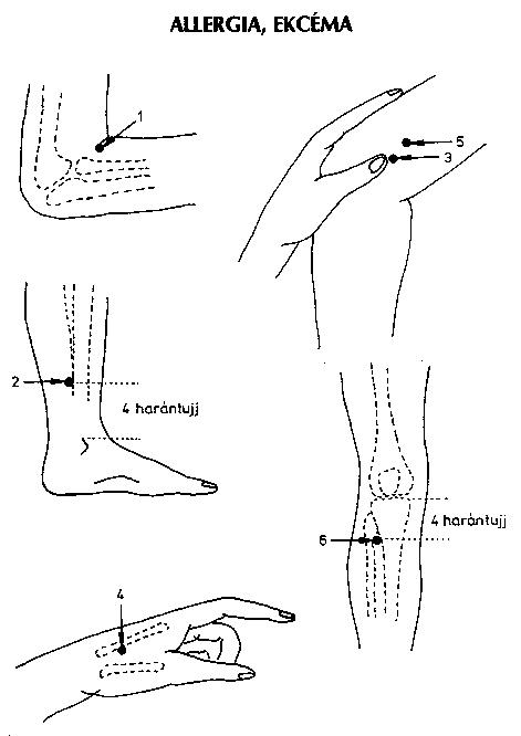 az ujjak ízületeinek ízületi gyulladásának kezelése könyökcsúcs gyulladás műtét