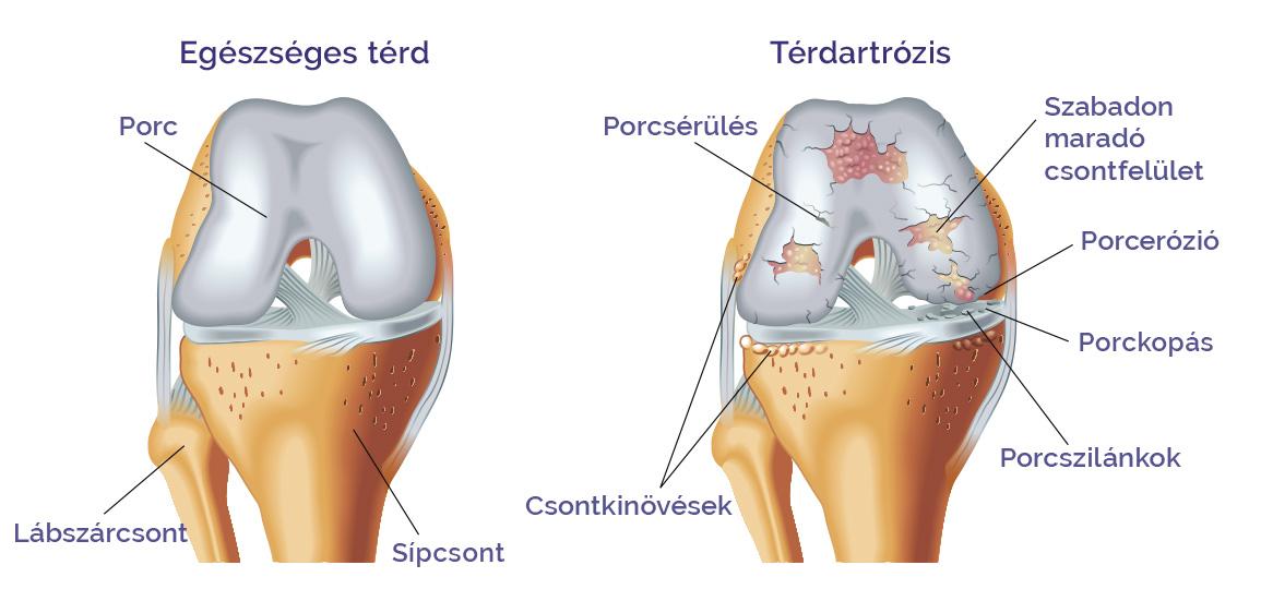 a térd és a láb artrózisának kezelése)