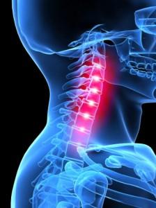 kenőcs a nyaki osteochondrozishoz)