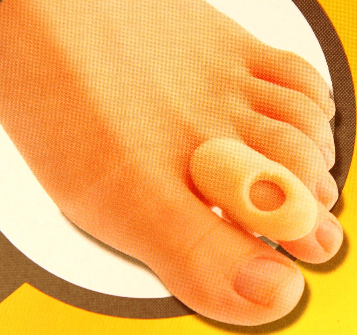 lábfej lábujjai ízületi ízületi gyulladása)