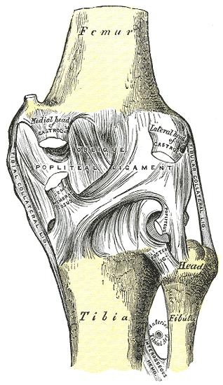 bilaterális 3. fokú térdízület ízületek fájnak epidurális után
