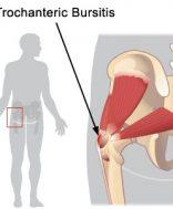 csípőbursitis tünetei és kezelése)