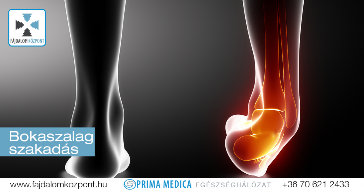 bokaízületek fájdalmainak okai és kezelése