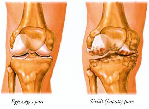 a vállízületek ízületi tünetei és kezelése vízi aerobika a vállízület artrózisához