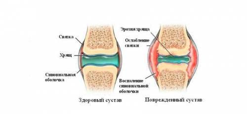 az ízületek soha nem fognak megbetegedni könyökízület osteoporosis kezelése