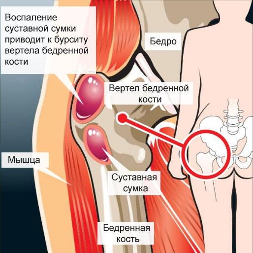 csípőfájás diszlokáció