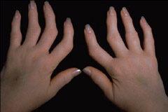 reumás ujjak kezelése