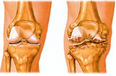 hogyan lehet az artrózist 4 fokkal kezelni