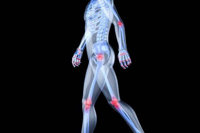 kondroprotektorok glükozamin-kondroitin mi a csípőtörés kezelése