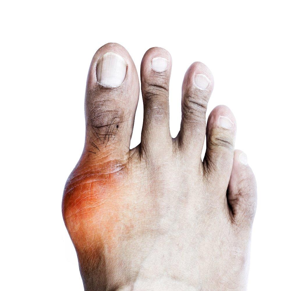 kenőcs térdízületek fájdalomcsillapítójára sarok-artrózis kezelési fórum