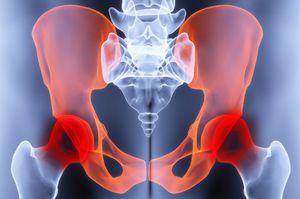 gyulladáscsökkentő gyógyszerek a csípőízület bursitisére)