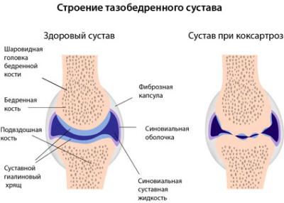 fájdalom a bal láb csípőízületében