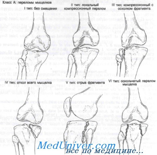 a térd deformáló artrózisának mértéke ahol a legjobb módszer a rheumatoid arthritis kezelésére