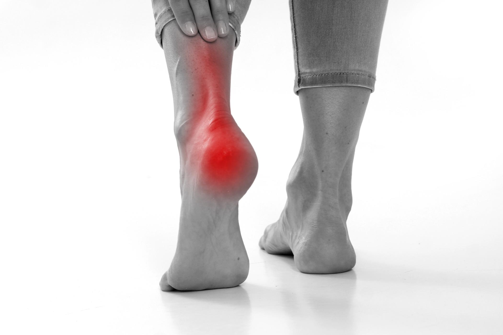 sarokfájdalom artrózis kezelése)