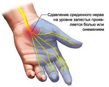 Tünetek és az arthrosis kezelése 2. fokozat: a betegség teljes leírása - Arthritis July